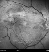 Red-free photograph demonstrate epiretinal membrane and retinal tractional forces