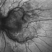 One week after epiretinal membrane surgery