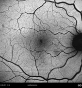 Autofluorescence photograph showing abnormal hyporeflectivity at macular area