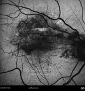 One day after epiretinal membrane surgery