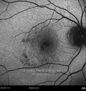 1 day after epiretinal membrane removal