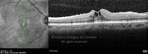 Epiretinal Membranes - Clinical Case 10