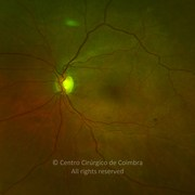 Ultra-widefield photograph magnification at posterior pole 1 month after epiretinal membrane removal