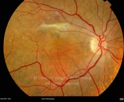 Fundus photograph 1 month after another intraocular injection of bevacizumab. Visual acuity: 20/200 RE