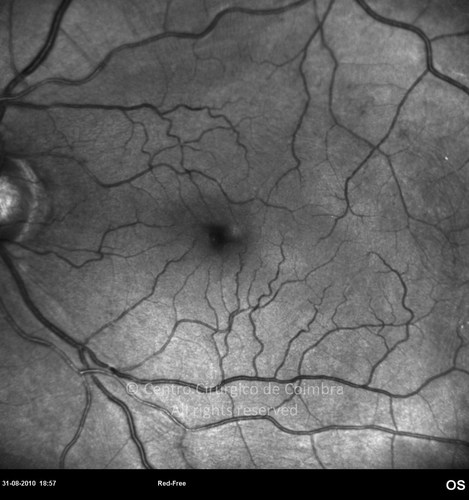 Epiretinal Membranes - Clinical Case 02