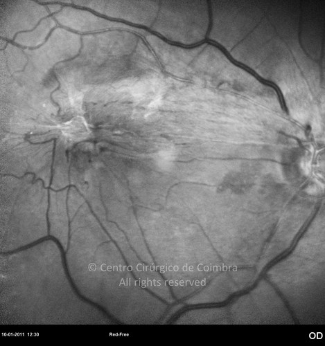 Epiretinal Membranes - Clinical Case 07