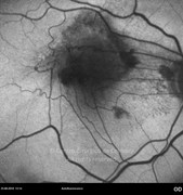 Autofluorescence photograph shows distortion of retinal vessels