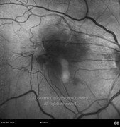 Red-free photograph  showing an epiretinal membrane and retinal distortion