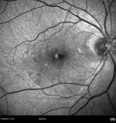 2 months after epiretinal membrane removal