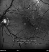 Red-free photograph of macular epiretinal membrane demonstrates traction forces on the retina. Visual acuity: 20/200 LE