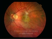 Fundus photograph of a macular epiretinal membrane, in a 64-year-old female patient. Visual acuity: 20/63 LE