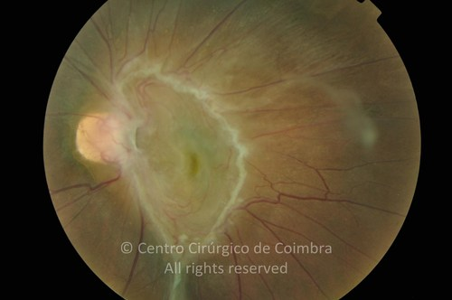 Epiretinal Membranes - Clinical Case 12