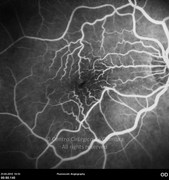 Fluorescein angiogram at arteriovenous phase shows the distortion of retinal vessels