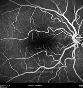 Fluorescein angiogram at mid-phase 4 months after epiretinal membrane removal