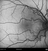 1 week after epiretinal membrane removal. Visual acuity: 20/40 RE