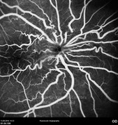 Fluorescein angiogram at early phase showing the tortuosity of retinal vessels caused by epiretinal membrane