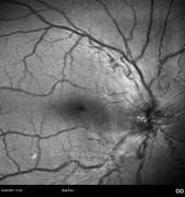 Red-free photograph 1 day after epiretinal membrane removal