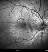 Red-free photograph of same case showing the hyper-reflectivity corresponding to the epiretinal membrane