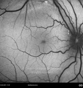 6 months after epiretinal membrane surgery