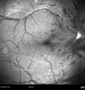 Note the reduction of  traction forces on the retina