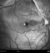 1 year after epiretinal membrane surgery