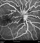 Fluorescein angiogram of the optic disc, at late phase