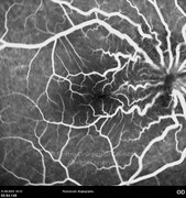 Fluorescein angiogram at early phase, 1 day after epiretinal membrane removal