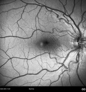 9 months after epiretinal membrane removal. Visual acuity: 20/32 RE