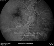Fluorescein angiogram at early phase10 days after epiretinal membrane removal