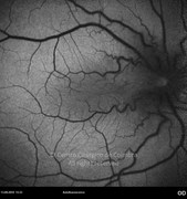 Autofluorescence photograph showing retinal vessels distortion caused by epiretinal membrane