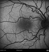 4 months after epiretinal membrane removal. Visual acuity: 20/40 RE
