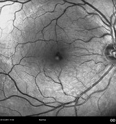 8 weeks after macular hole surgery
