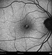 2 weeks after macular hole surgery. Visual acuity: 20/50 RE
