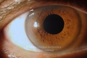 Anterior segment photograph, 8 weeks after macular hole surgery