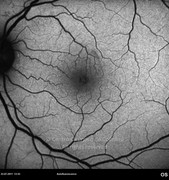 3 weeks after macular hole surgery. Visual acuity: 20/32 LE