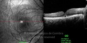 OCT line-scan 2 weeks after surgery showing closed macular hole with some subretinal fluid