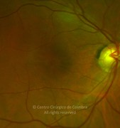 Ultra-widefield photograph magnification of a macular hole case in a 67-years-old female patient.Visual acuity: 20/400 RE
