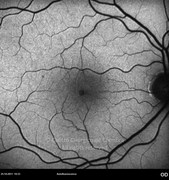 1 month after surgery. Visual acuity: RE