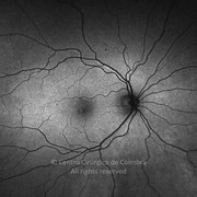 Two years after macular hole surgery