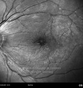 4 months after epiretinal membrane surgery. The white granules of triamcinolone are visible