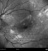 Red-free photograph showing macular epiretinal membrane and retinal traction forces