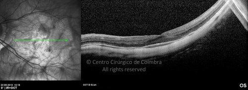 Degenerative Myopia - Clinical Case 07
