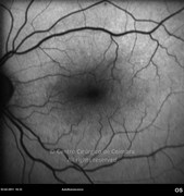 1 month after the epiretinal membrane removal. Note that the retinal vessels distortion disappears