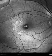 Fundus photograph 7 months after vitreomacular traction syndrome surgery shows recurrence of extramacular epiretinal membrane (hyperfluorescent)
