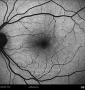 4 months after epiretinal membrane surgery.
