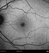 Ultra-widefield photograph 1 day after vitreoretinal surgery