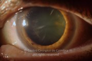 Seven years after presentation. Cataract BCVA: 20/200 LE