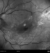 Red-free photograph show macular epiretinal membrane and retinal traction forces