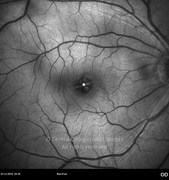 Red-free photograph of vitreomacular traction syndrome in same case. Intraretinal cystic changes caused by the vitreoretinal changes become aparent