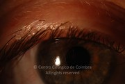 Eyelid examination before cataract surgery showing no blepharitis